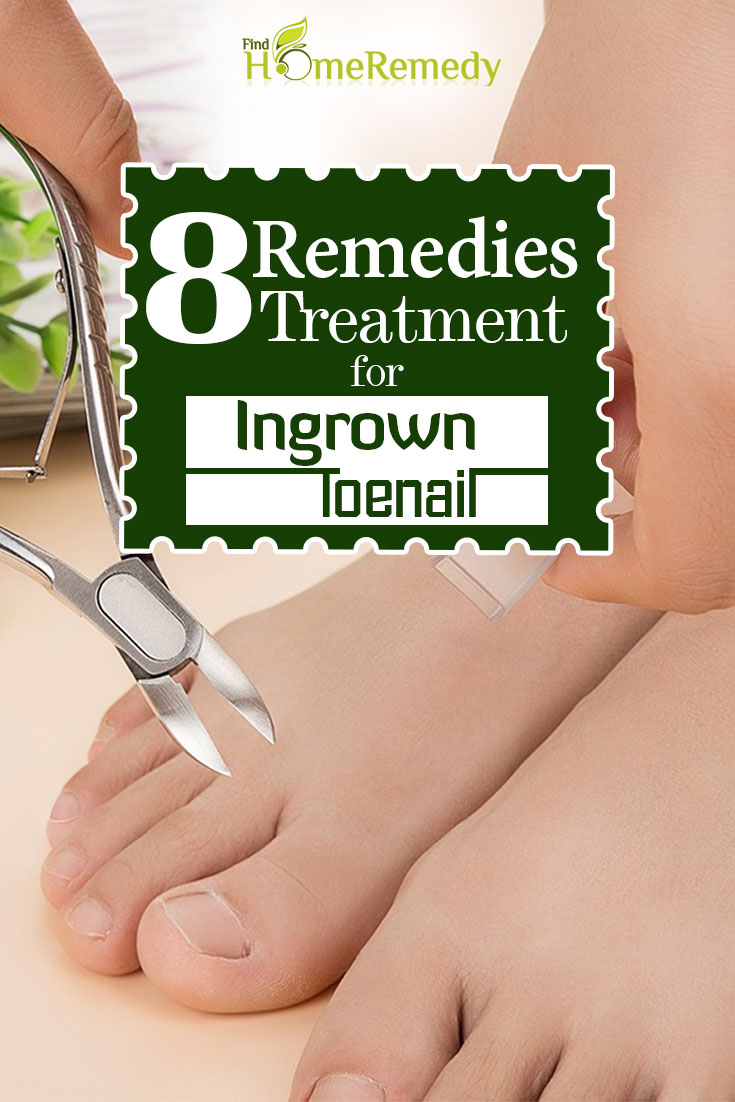 8 Outstanding Home Treatments For Ingrown Toenail - How To Treat ...