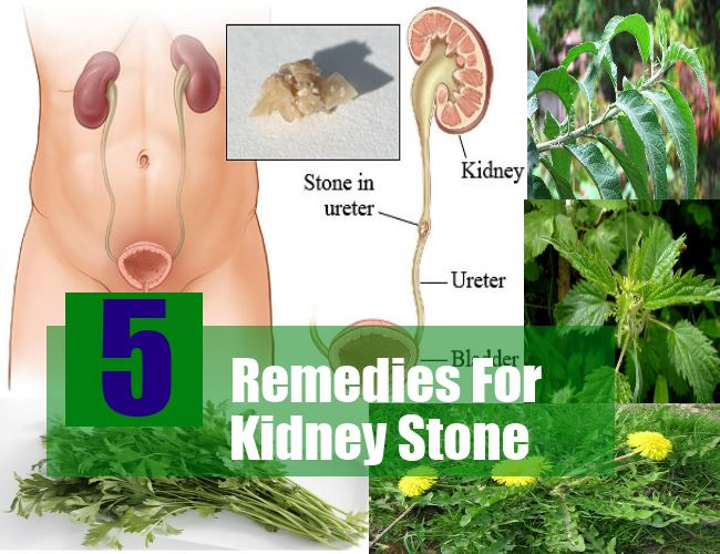 5 Herbal Remedies For Kidney Stone Natural Ways To Cure Kidney Stones Find Home Remedy Supplements