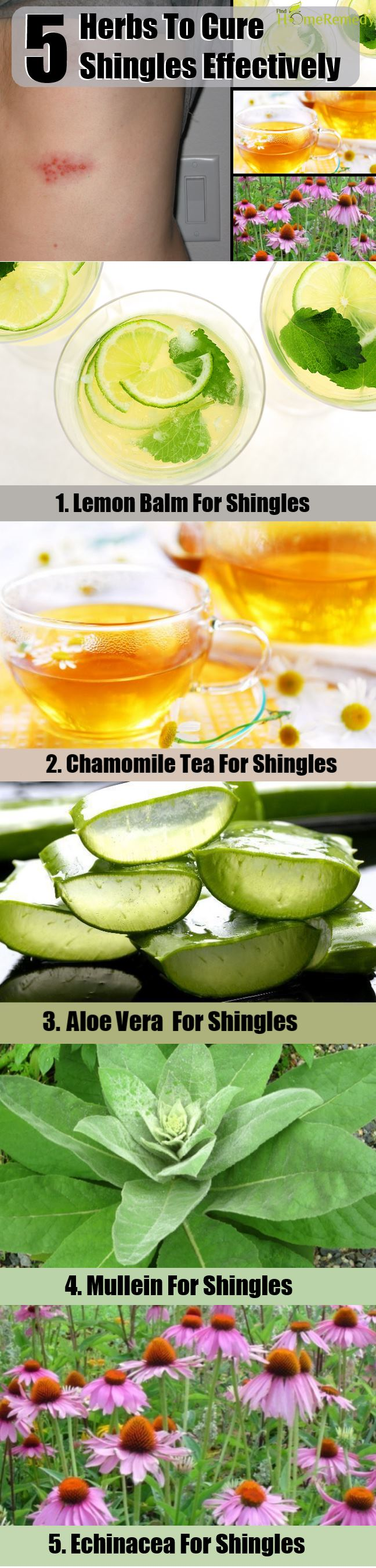5 Herbs To Cure Shingles Effectively