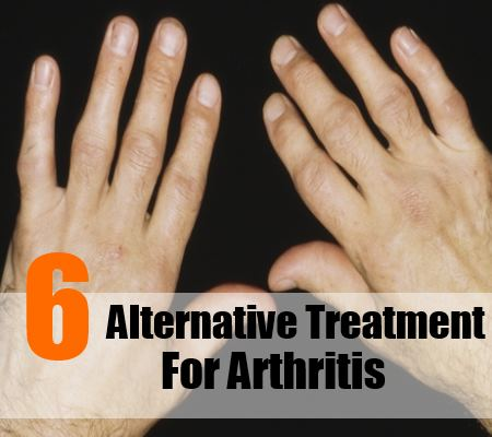 6 Alternative Treatment for Arthritis