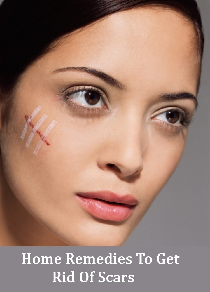 9 Effective Home Remedies To Get Rid Of Scars