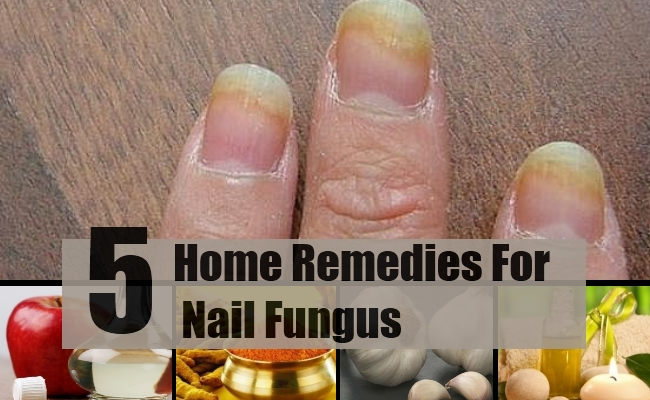 5 Home Remedies For Nail Fungus - Natural Treatments & Cure For Nail ...