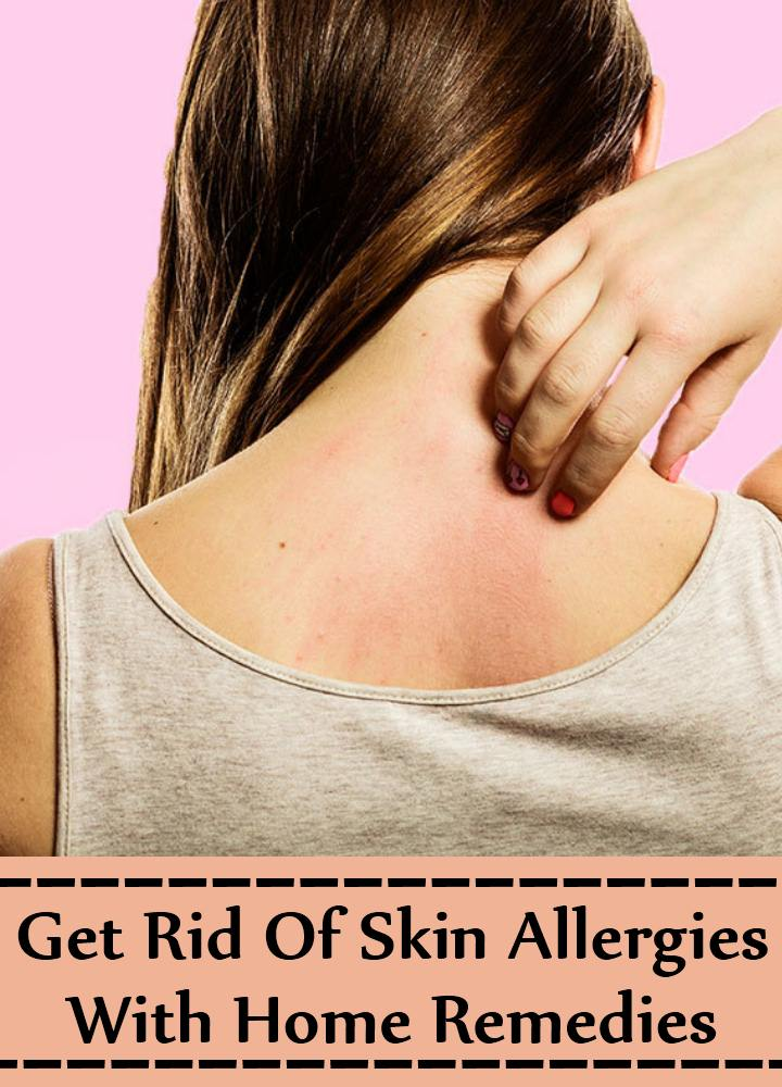 Tips To Get Rid Of Skin Allergies With Home Remedies