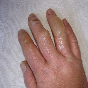 Home remedy for burns on fingers