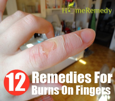 Burns On Fingers