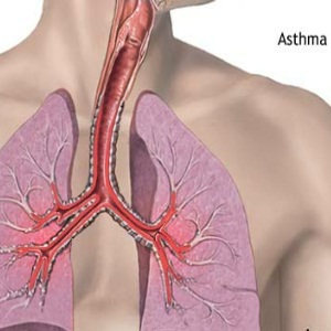 Home Remedies Of Asthma Symptoms