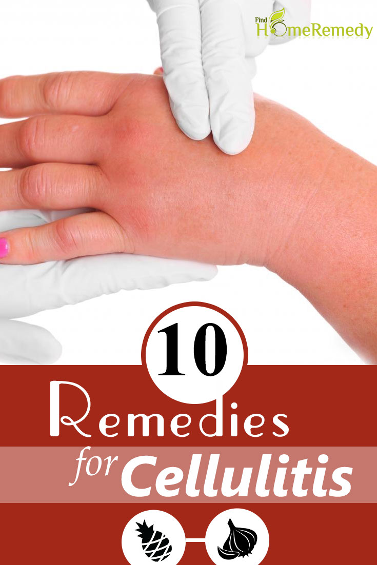 Remedies For Cellulitis