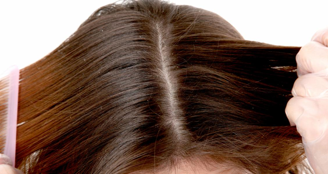 10 Home Remedies For Dry Flaky Scalp - Natural Treatments