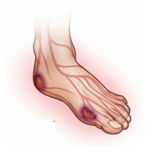 Cure Burning Feet