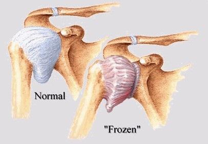 Cure frozen shoulder