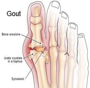 Cure gout in feet