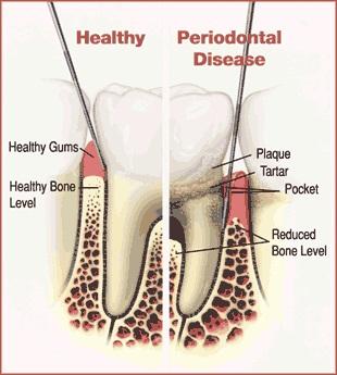 Cure gum disease