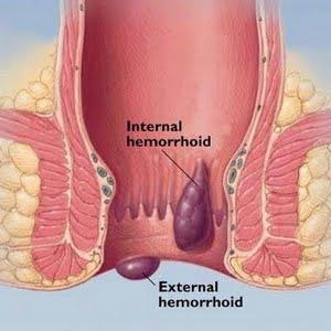 Cure Hemorrhoids Pain