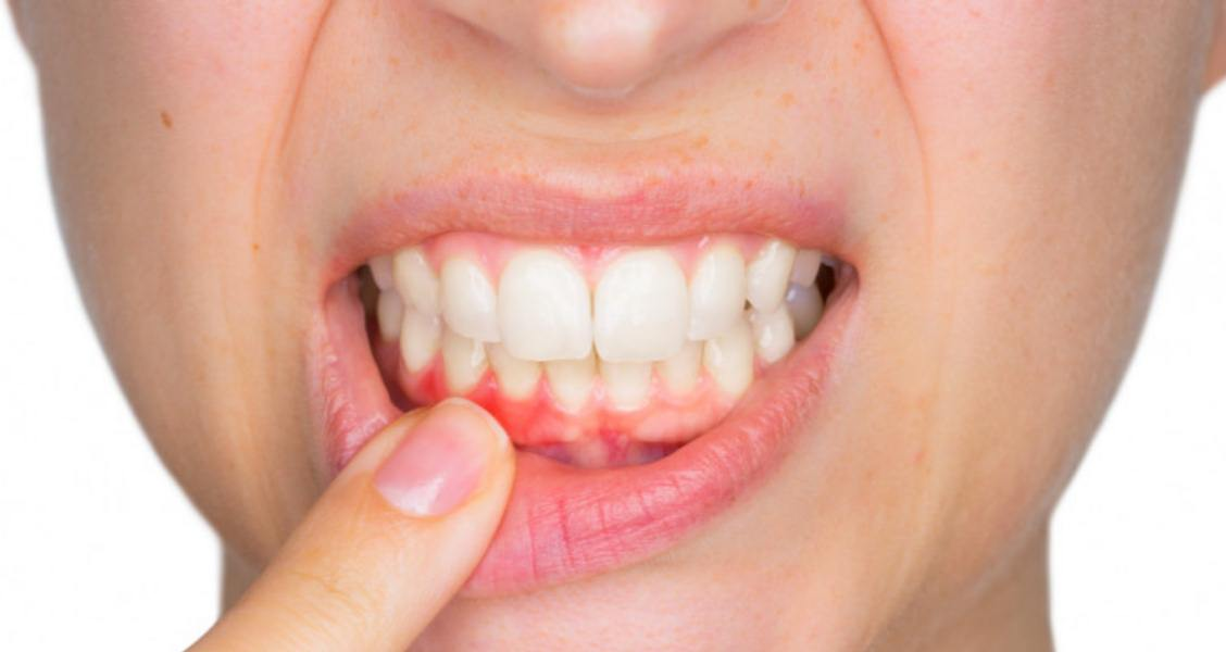 13 Home Remedies For Receding Gums