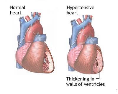 Cure hypertension