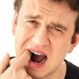 Cure Mouth Ulcers