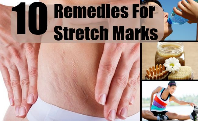 Remedies For Stretch Mark