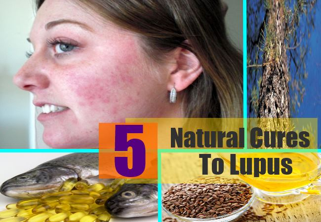 Natural Cures For Systemic Arthritis