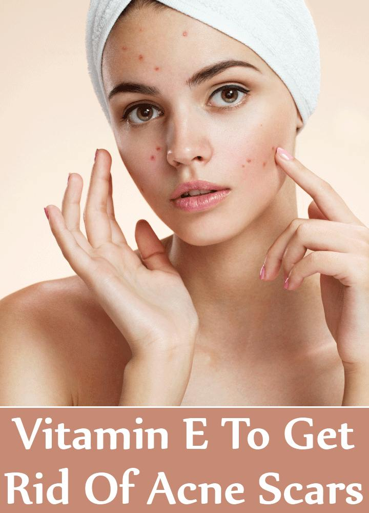 Vitamin E To Get Rid Of Acne Scars