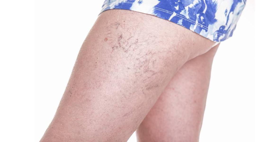 5 Best Home Remedies For Spider Veins