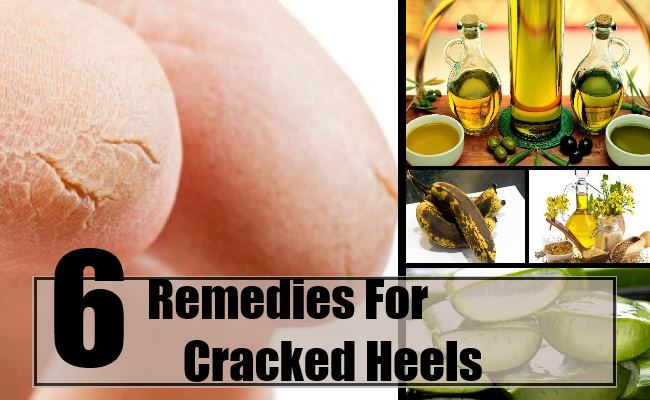 Remedies For Cracked Heels