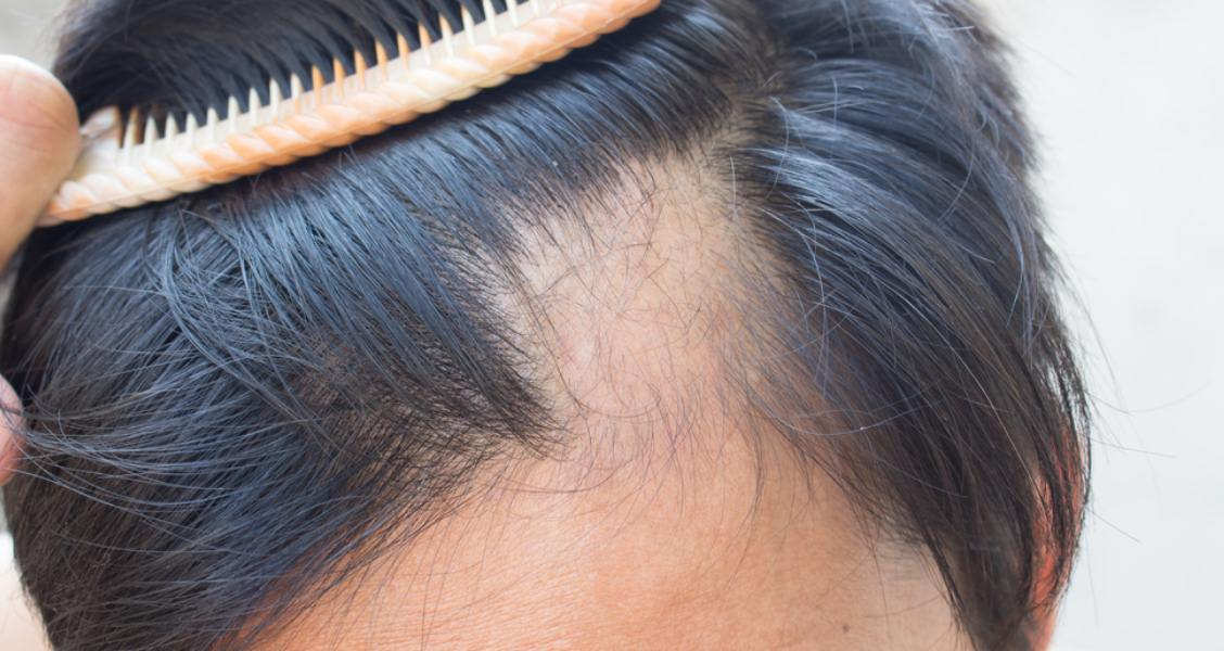 5 Natural Cures To Alopecia Areata