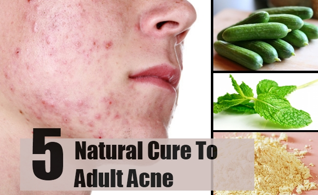 Acne adult natural treatment join. was