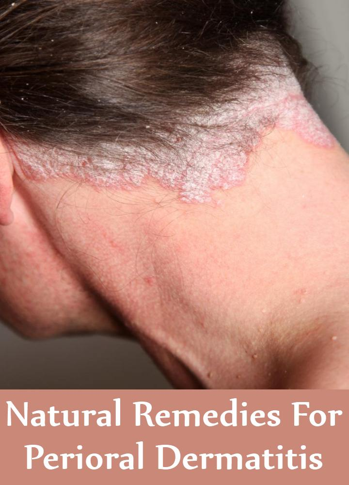 Natural Remedies For Dermatitis Around Nose