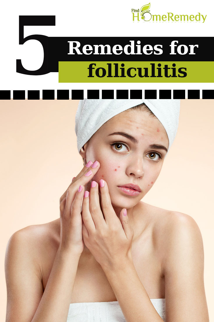 5 Natural Cure For Folliculitis