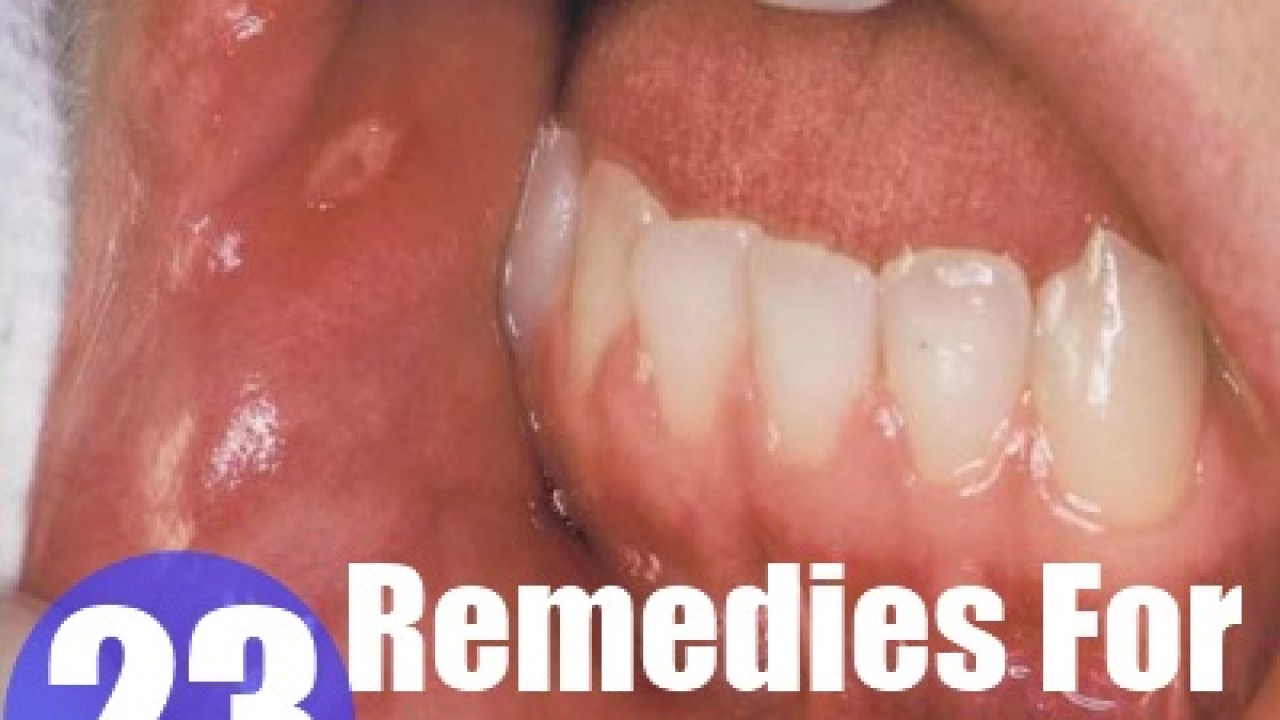 Home Remedies For Mouth Ulcers - Natural Treatments & Cure