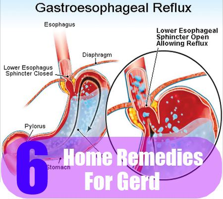 Natural Cure For Gerd Home Remedy