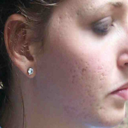 Acne scars cure