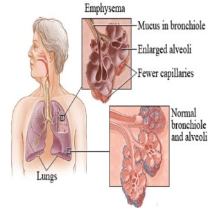 Herbal Remedies For Emphysema