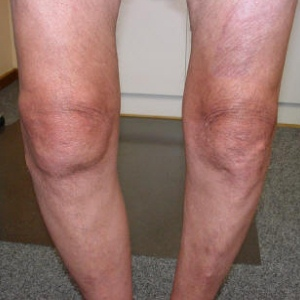 Natural Cure For Arthritis In Knees