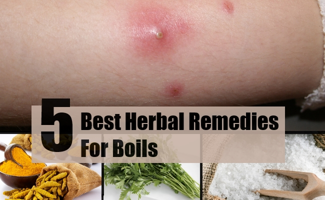 5 Best Herbal Remedies For Boils - Treatments & Cure For