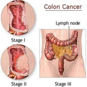 Natural Cure For Colon Cancer