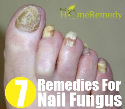 7 Herbal Remedies For Nail Fungus - Treatments & Cure For Nail ...