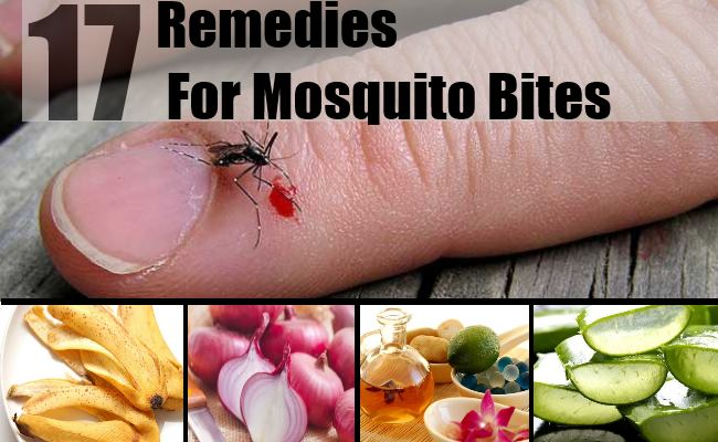 Remedies For Mosquito Bites