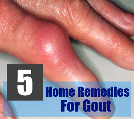 5 Effective Home Remedies For Gout
