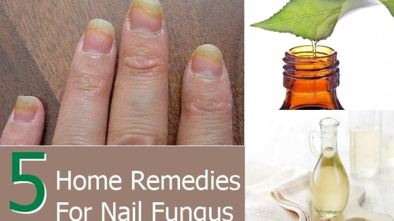 5 Simple Home Remedies For Nail Fungus - Natural Treatments & Cure ...