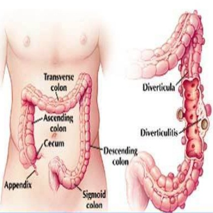Best Natural Cure For Diverticulosis