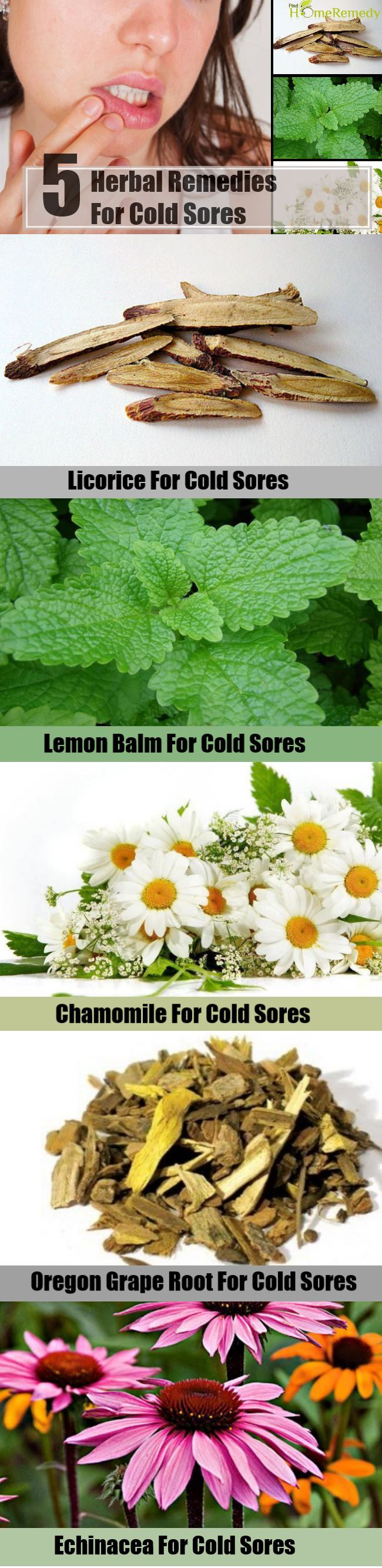 5 Herbal Remedies For Cold Sores