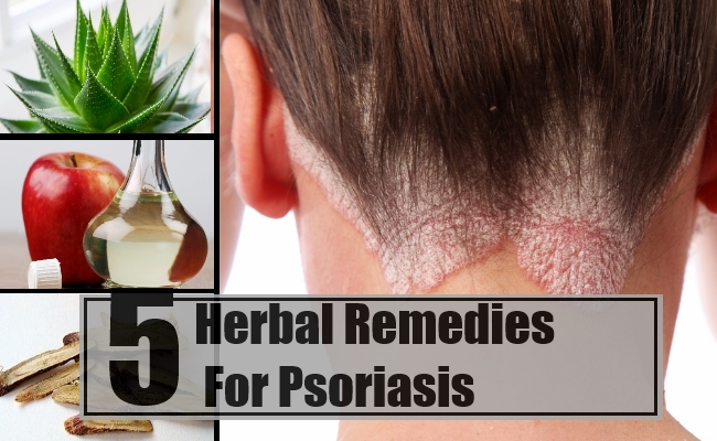 Remedies For Psoriasis