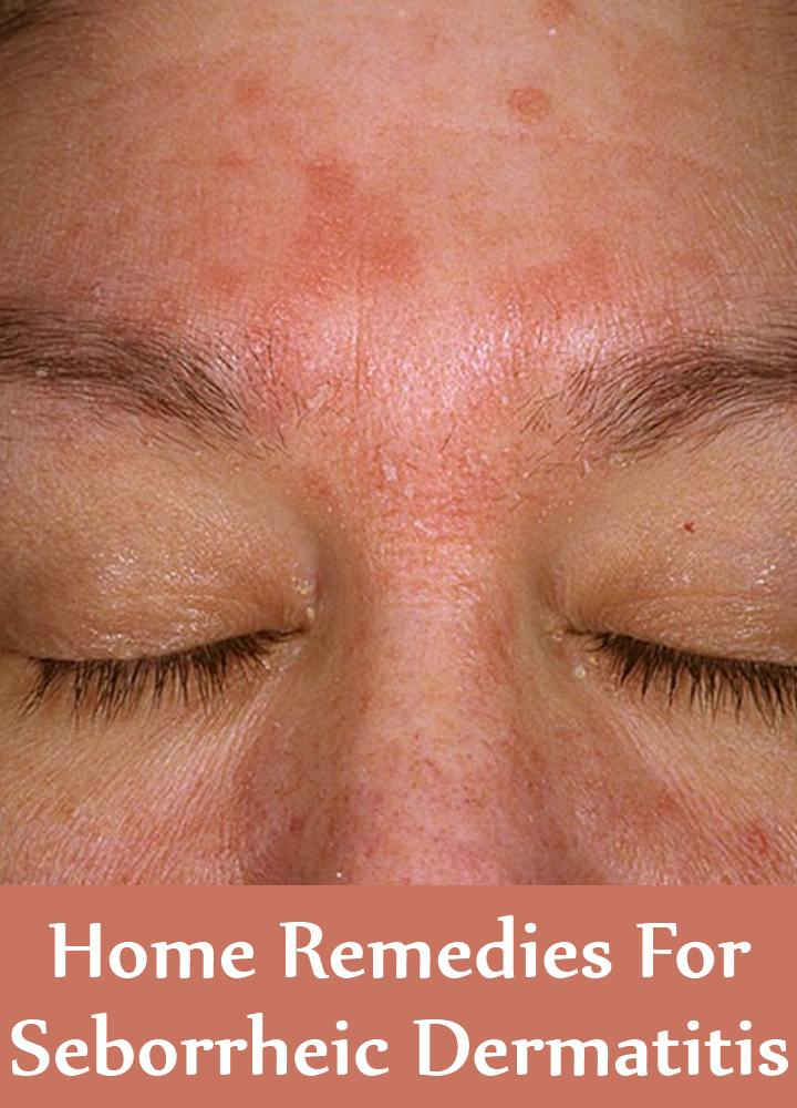 Home Remedies For Seborrheic Dermatitis