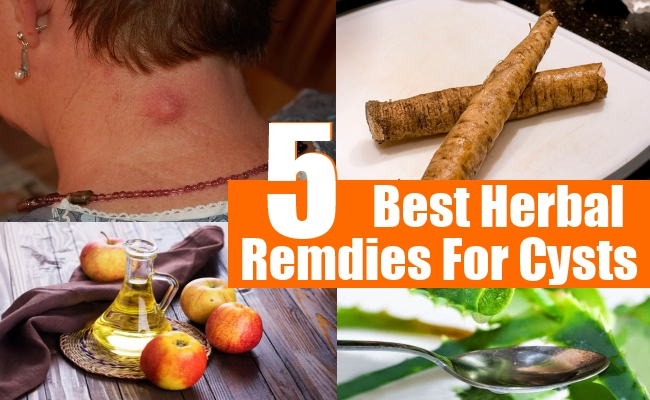 Remdies For Cysts