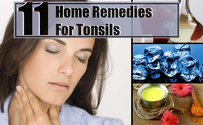 Remedies For Tonsils