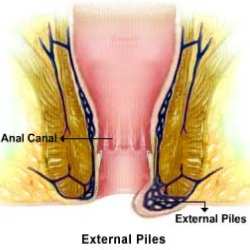 Effective Home Remedies For External Piles
