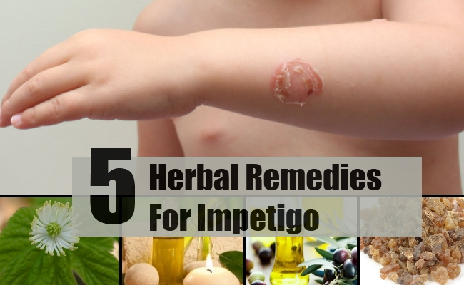 5 effective herbal remedies for impetigo - best herbs for impetigo, Human Body