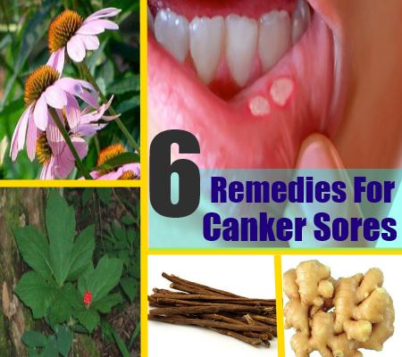 6 Effective Herbal Remedies For Canker Sores - How To Treat