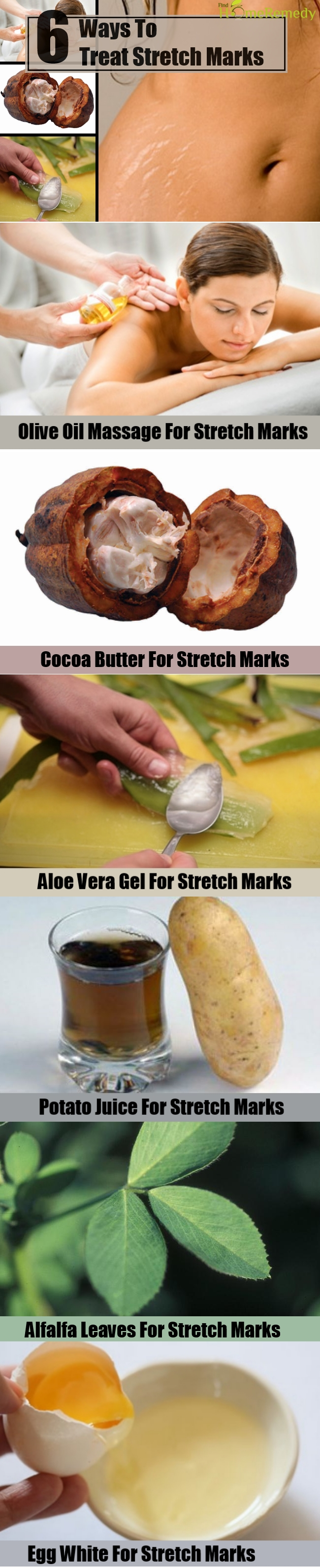 6 Ways To Treat Stretch Marks